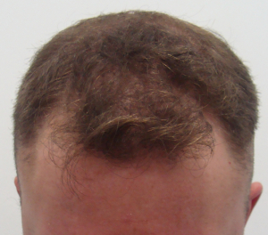 Before FUE- front view